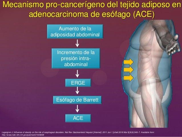 Mecanismo pro-cancerígeno del tejido adiposo en adenocarcinoma de esófago (ACE) Lagergren J. Influence of obesity on the r...