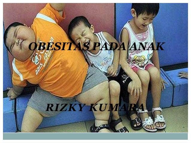 Obesitas Pada Anak Picu Diabetes