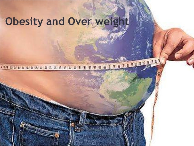 Obesity and Over weight