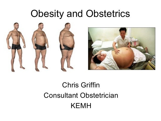 Obesity and Obstetrics Chris Griffin Consultant Obstetrician KEMH