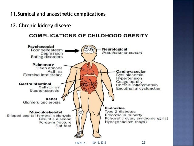 pathophysiology of obesity essay The pathophysiology of obesity-related respiratory failure is complex diagnostic sleep studies should be performed to confirm the diagnosis,.