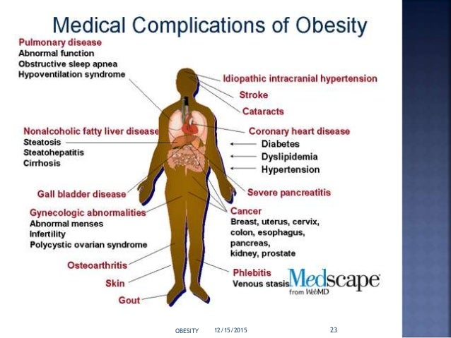 Obesity and its pathophysiology