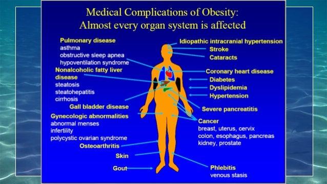 Risk Factor Obesity (RFO)
