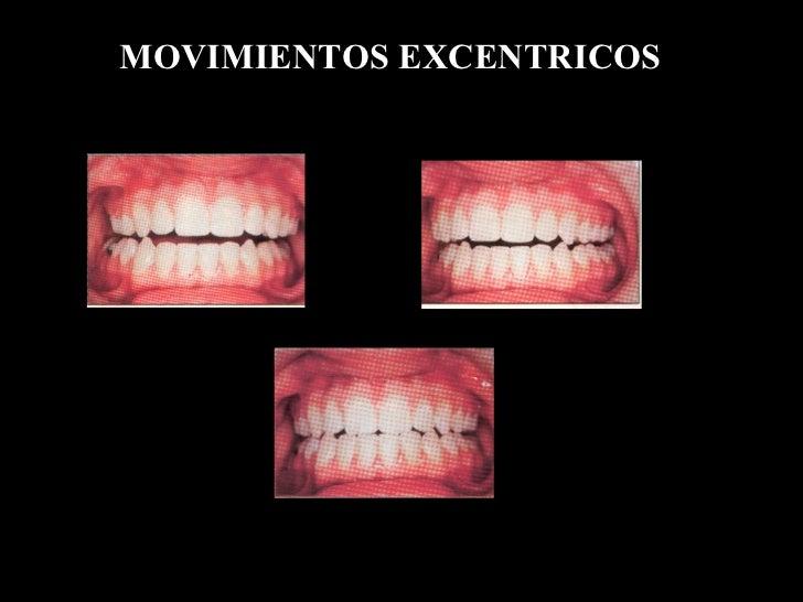 MOVIMIENTOS EXCENTRICOS