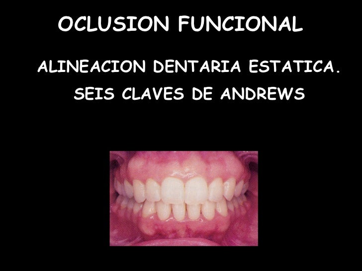 OCLUSION FUNCIONALALINEACION DENTARIA ESTATICA.   SEIS CLAVES DE ANDREWS