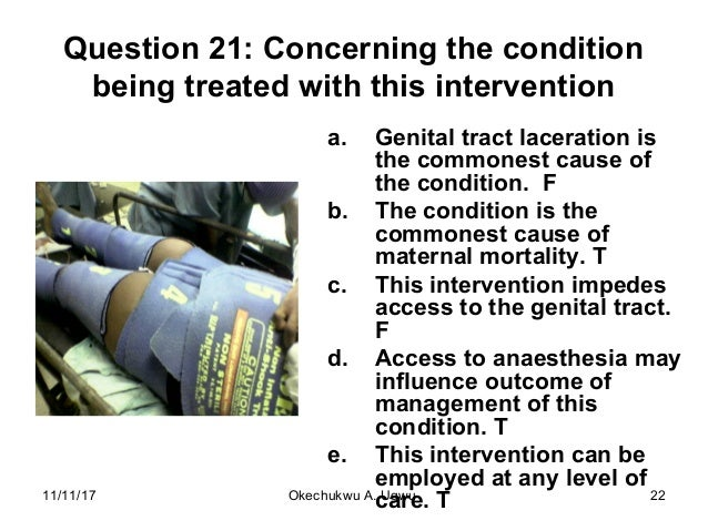 Question 21: Concerning the condition being treated with this intervention a. Genital tract laceration is the commonest ca...