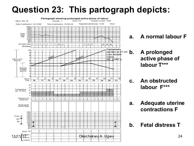 Question 23: This partograph depicts: a. A normal labour F b. A prolonged active phase of labour T*** c. An obstructed lab...