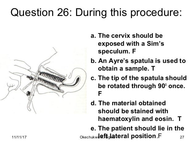 Question 26: During this procedure: a. The cervix should be exposed with a Sim's speculum. F b. An Ayre's spatula is used ...