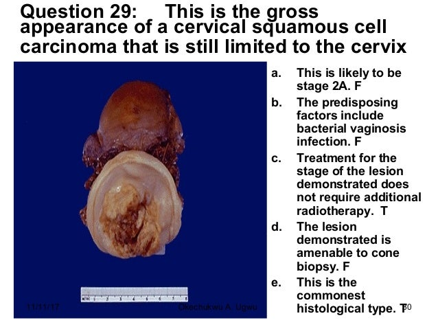 Question 29: This is the gross appearance of a cervical squamous cell carcinoma that is still limited to the cervix a. Thi...