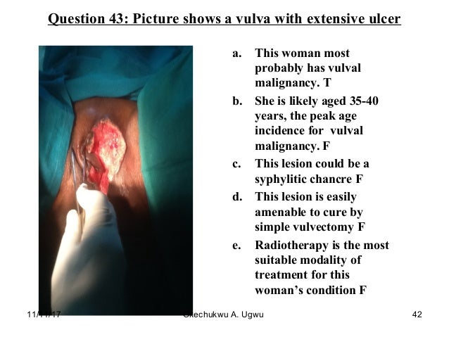 Question 43: Picture shows a vulva with extensive ulcer a. This woman most probably has vulval malignancy. T b. She is lik...