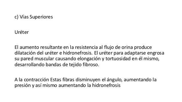 c) Vías Superiores Uréter El aumento resultante en la resistencia al flujo de orina produce dilatación del uréter e hidron...