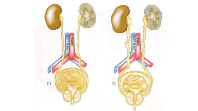 Riñón El aumento de la presión provoca una dilatación de la pelvis y de los cálices, haciendo la papila convexa como resul...
