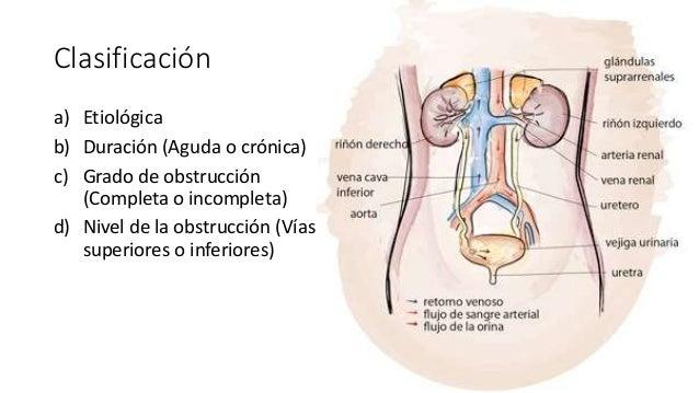Clasificación a) Etiológica b) Duración (Aguda o crónica) c) Grado de obstrucción (Completa o incompleta) d) Nivel de la o...