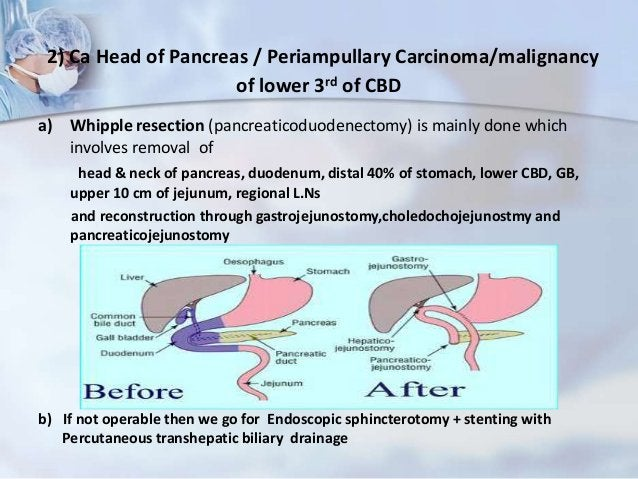 5) CholanchiocarcinomaSurgery depends on the stage of tumor and may involve• Removal of the bile ductsIf the tumor is at a...