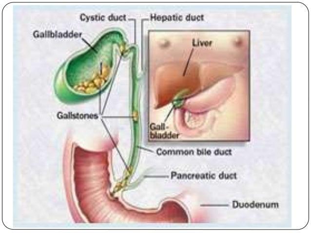 Obstructive Jaundice 1
