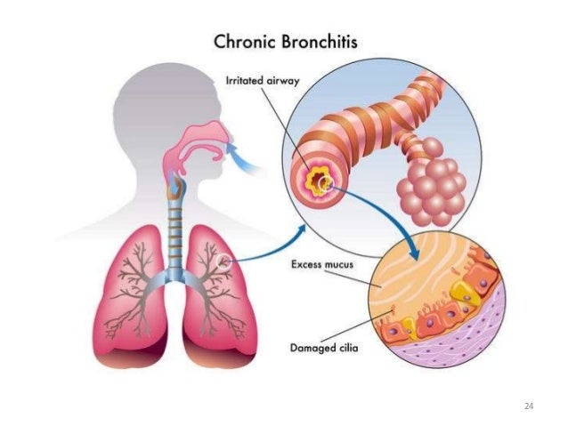 Obstructive lung diseases 24 25 ccuart Choice Image