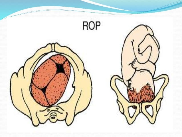 Occiput posterior: does it affect labor and how to manage it?