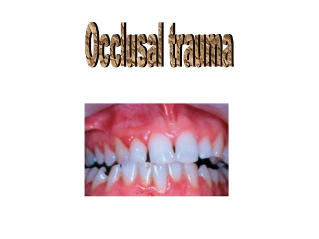 Definition: Occlusal trauma :- injury resulting in tissue changes within the attachment apparatus as a result of occlusal ...