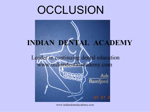 OCCLUSION INDIAN DENTAL ACADEMY Leader in continuing dental education www.indiandentalacademy.com  www.indiandentalacademy...