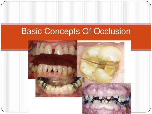 Basic Concepts Of Occlusion
