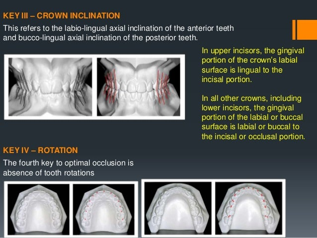 DIFFERENCES BETWEEN NATURAL & ARTIFICIAL OCCLUSION NATURAL TEETH ARTIFICIAL TEETH Natural teeth function independently & e...