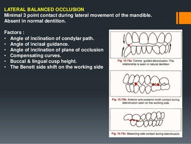 Components of condylar guidance a).Horizontal condylar guidance-guides the forward movement for protrusive balance. b).Lat...