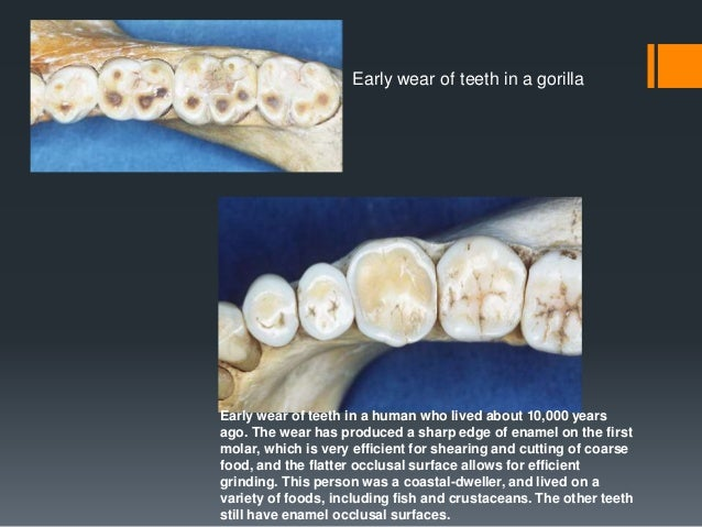 Early wear of teeth in a gorilla Early wear of teeth in a human who lived about 10,000 years ago. The wear has produced a ...