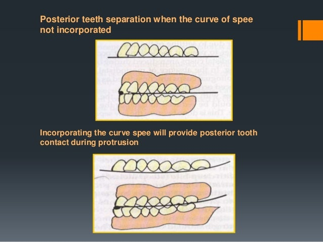 ADVANTAGES : • They are more adaptable to the unusual jaw relation such as class II and class III relations, used easily i...