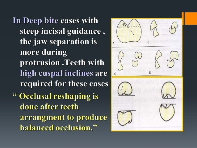OCCLUSION IN COMPLETE DENTURES