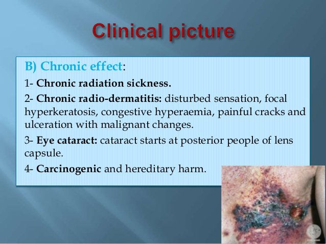 1- Medical measures: - Pre-employment & Periodic medical examination. 2- Engineering measures: - Enclosure of dusty proces...