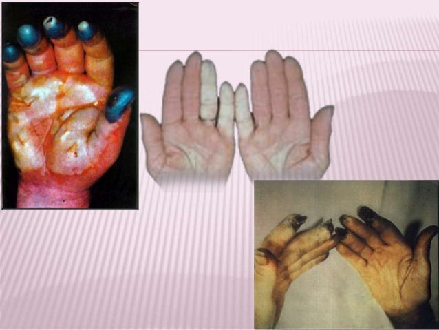 COBALT  Cobalt: used to stabilize beer foam (1960's: Canada, Belgium)  Cardiomyopathy reported in beer drinkers several ...