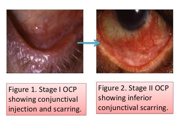 Ocular cicatricial pemphigoid pathology report