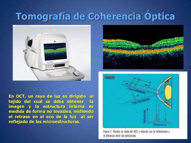 Resultado de imagen de tomografía de coherencia óptica