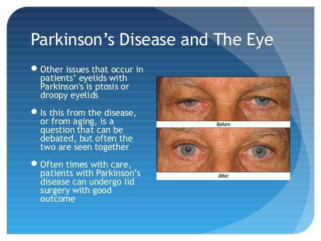 Parkinson's Disease and the Eye