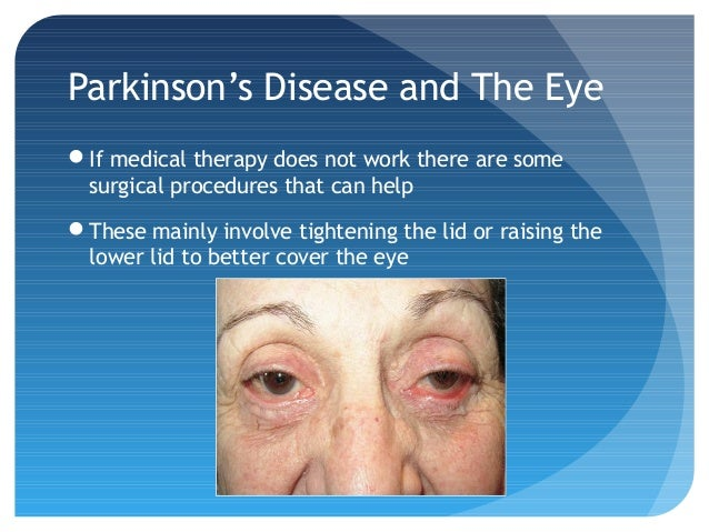 Parkinson S Disease And The Eye