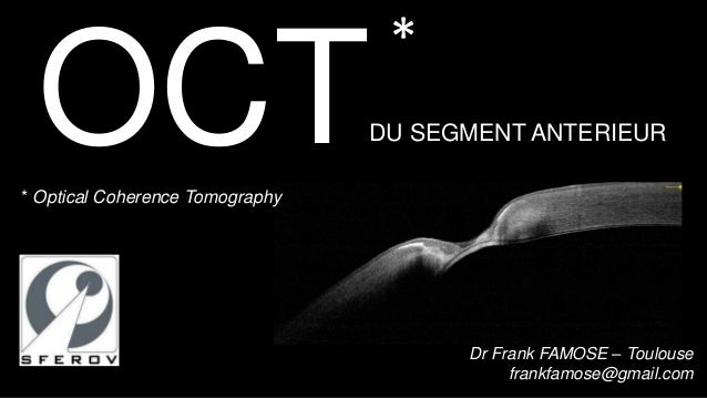 * OCT* Optical Coherence Tomography                                 DU SEGMENT ANTERIEUR                                  ...