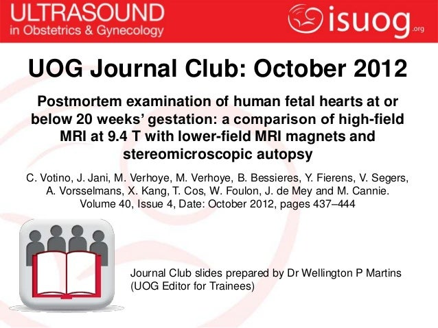UOG Journal Club: October 2012  Postmortem examination of human fetal hearts at or below 20 weeks' gestation: a comparison...