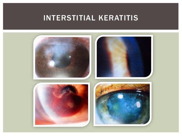 Primary Syphilis Rash Ocular manifestations ...