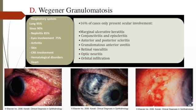 D. Wegener Granulomatosis
