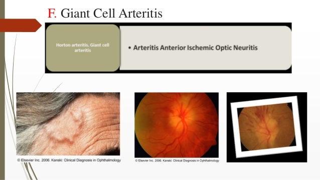 F. Giant Cell Arteritis