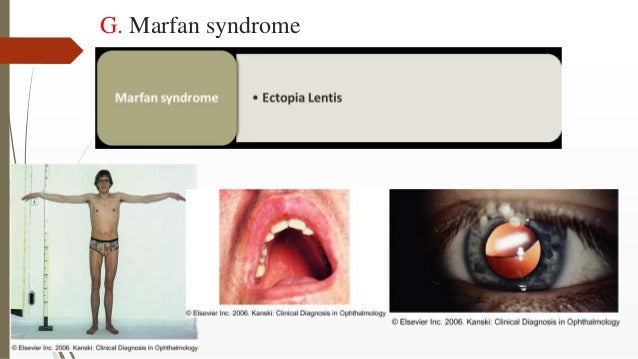 G. Marfan syndrome