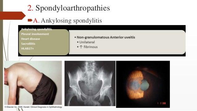 2. Spondyloarthropathies A. Ankylosing spondylitis