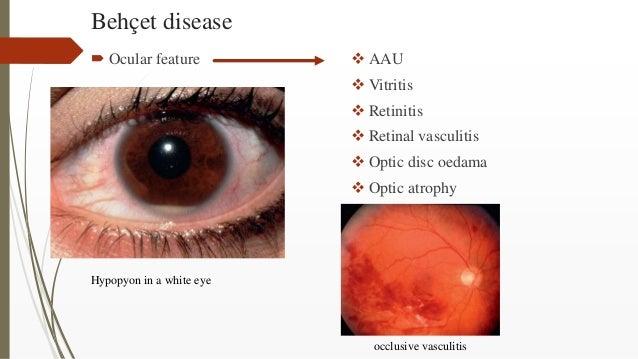 Behçet disease  Ocular feature  AAU  Vitritis  Retinitis  Retinal vasculitis  Optic disc oedama  Optic atrophy Hypo...