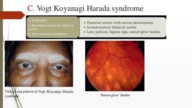 C. Vogt Koyanagi Harada syndrome Vitiligo and poliosis in Vogt–Koyanagi–Harada syndrome 'Sunset glow' fundus