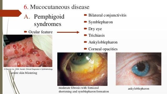 6. Mucocutaneous disease A. Pemphigoid syndromes  Ocular feature  Bilateral conjunctivitis  Symblepharon  Dry eye  Tr...
