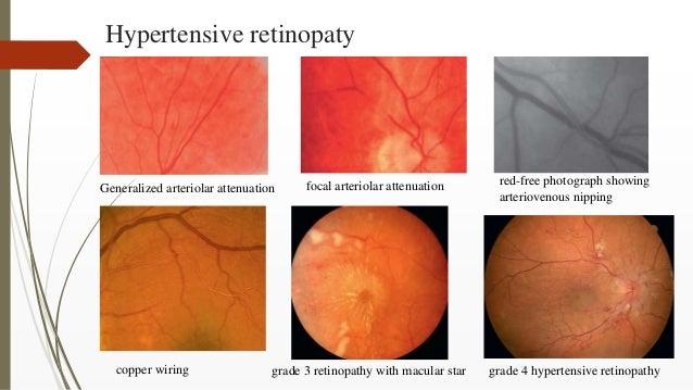 Hypertensive retinopaty Generalized arteriolar attenuation focal arteriolar attenuation red-free photograph showing arteri...