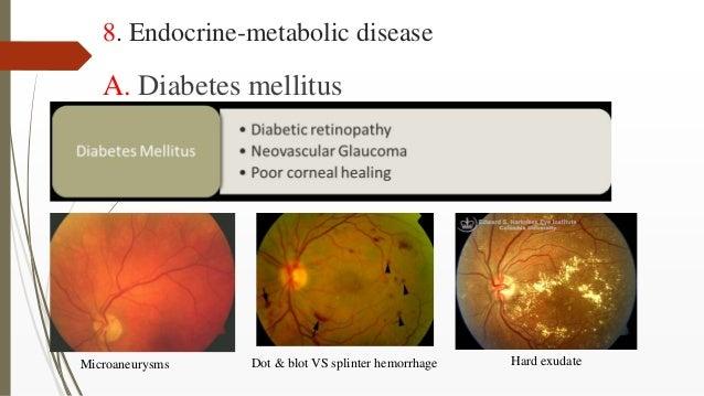 8. Endocrine-metabolic disease A. Diabetes mellitus Microaneurysms Dot & blot VS splinter hemorrhage Hard exudate