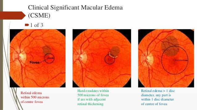 Clinical Significant Macular Edema (CSME) 1 of 3 Retinal edema within 500 microns of centre fovea Hard exudates within 50...