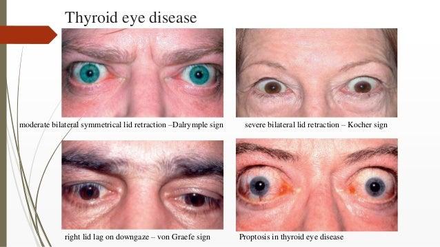 Thyroid eye disease moderate bilateral symmetrical lid retraction –Dalrymple sign severe bilateral lid retraction – Kocher...