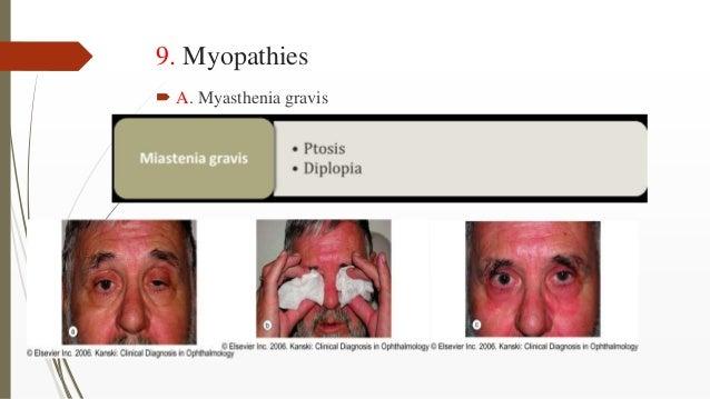 9. Myopathies  A. Myasthenia gravis